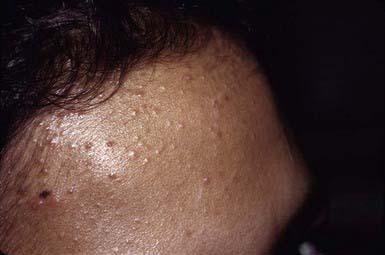 Kết quả hình ảnh cho hairline acne