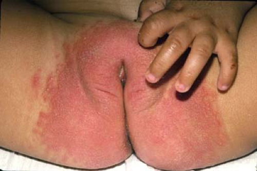 Pediatric anal cellulitis