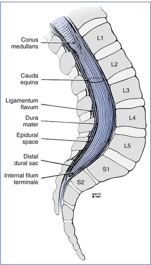 Spinal, Epidural, and Caudal Anesthesia | Obgyn Key
