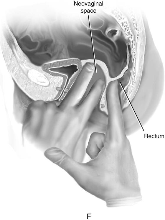 Anal dilatation hearst dilator