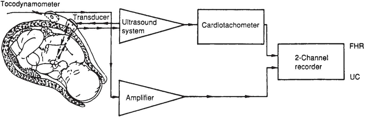 Fetal monitoring and testing obgyn key schematic diagram of an indirect fetal monitoring system the fetal heart rate fhr is obtained using doppler techniques and then counted by a ccuart Choice Image