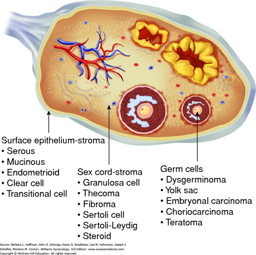 Chapter 36 Ovarian Germ Cell And Sex Cord Stromal Tumors Obgyn Key
