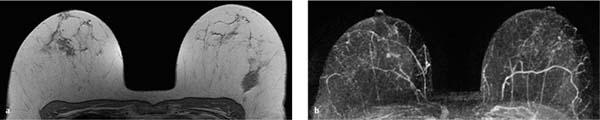 Normal Findings in Breast MRI | Obgyn Key