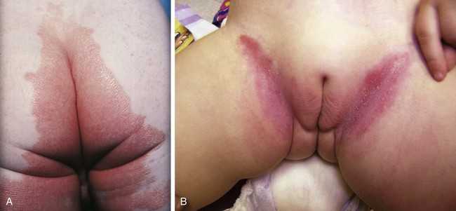 Have bumps on your vagina