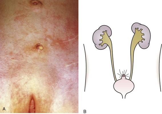 Vesicostomy Urologic Disorders | O...