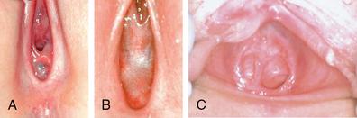Septate Hymen Sex 19