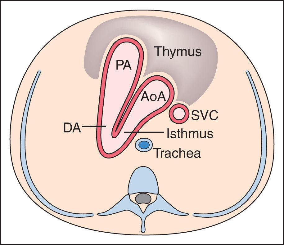 Amazing Cardiac Vessel Anatomy Motif - Image of internal organs of ...