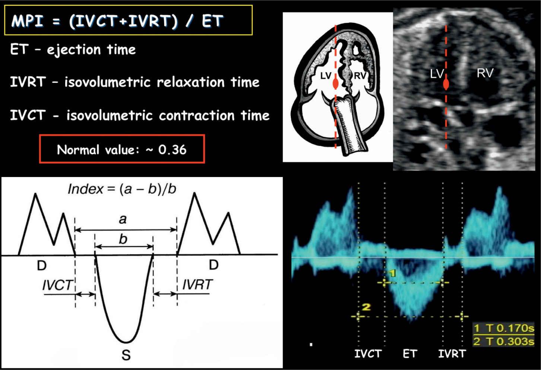Fetal Cardiac Function | Obgyn Key