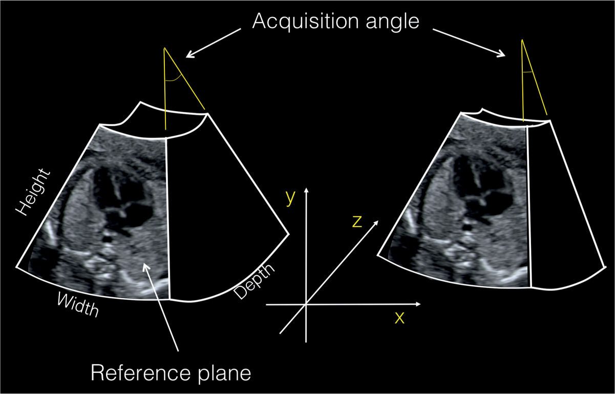 Three- and Four-Dimensional Ultrasound of the Fetal Heart | Obgyn Key