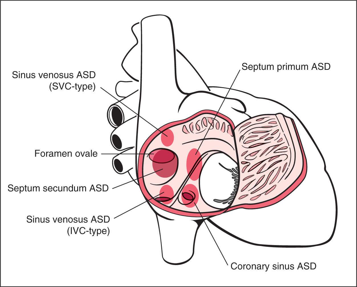 Amazing Atrial Septum Anatomy Model Anatomy Ideas Yunokifo