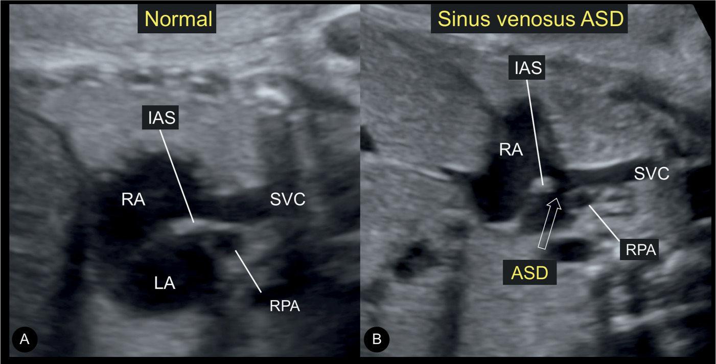 Atrial, Ventricular, and Atrioventricular Septal Defects ...  Sinus Venosus Asd