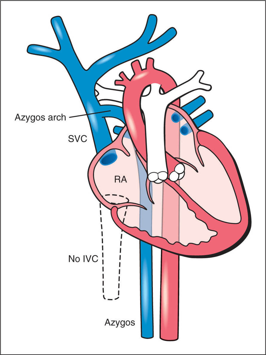 Anomalies of Systemic and Pulmonary Venous Connections | Obgyn Key