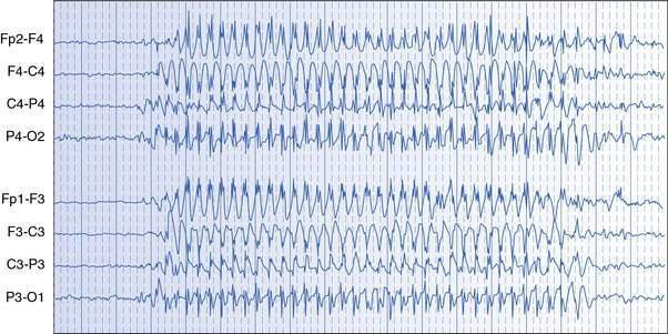 Seizures And Epilepsies Obgyn Key