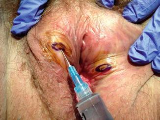 Biopsy infection of vulva
