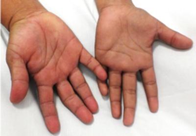 Metabolic Hyperpigmentation: Carotenemia, Pernicious ... B12 Deficiency Nails
