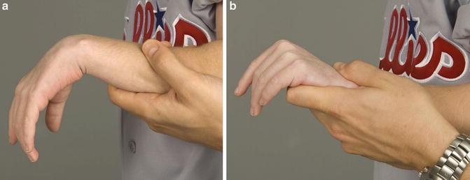 radial nerve injury obgyn key