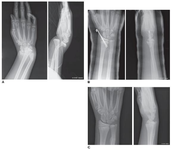 Distal Radius And Carpal Fractures Obgyn Key