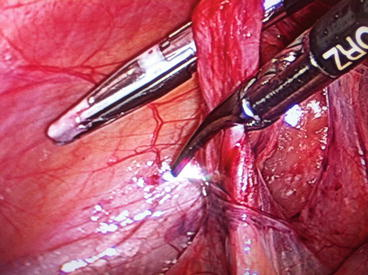 Laparoscopic Varicocelectomy | Obgyn Key