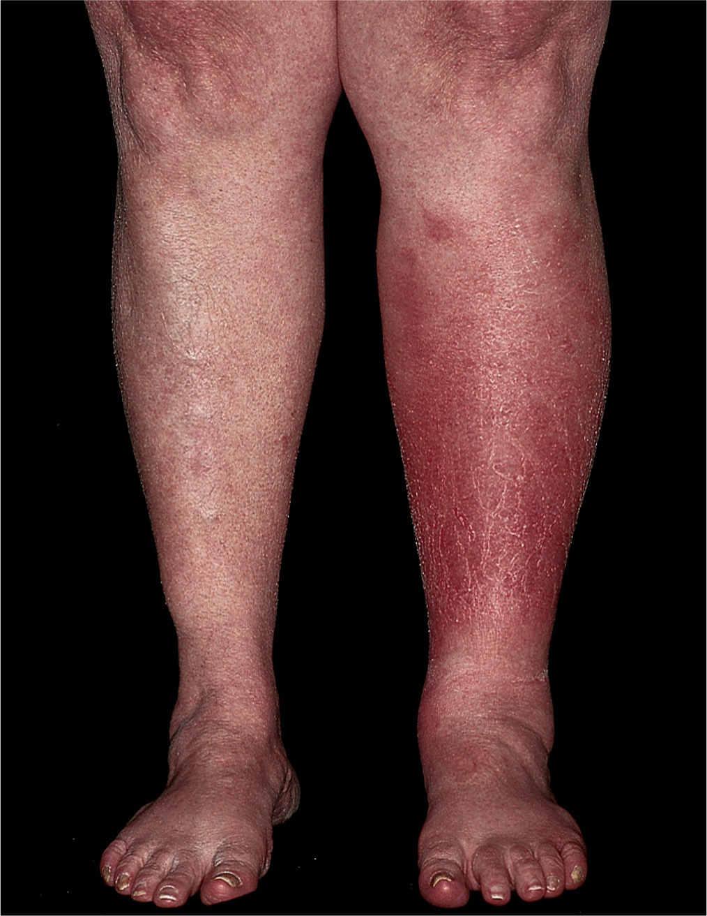 Dermatologic Diseases | Obgyn Key