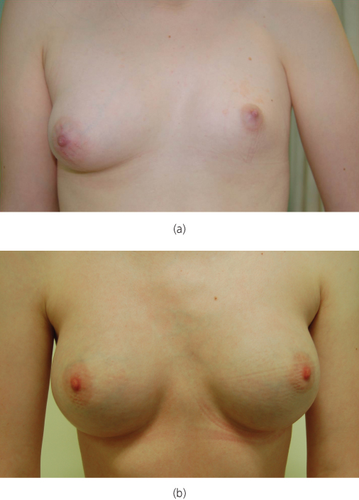 Kylie jenner breast implants