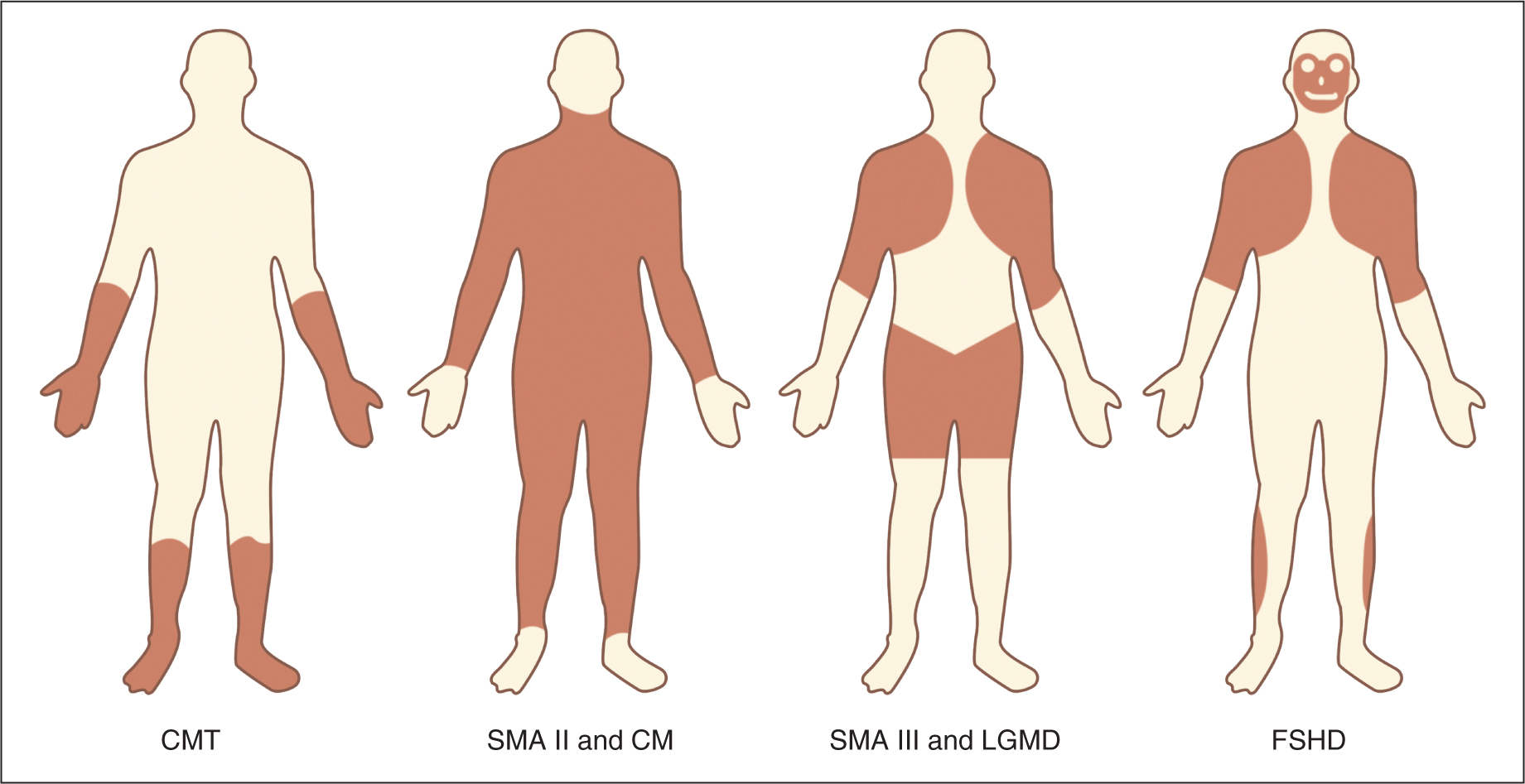 Lumbar Lordosis Pregnancy