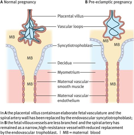 normal pregnancy diagram placental structure and function obgyn key  placental structure and function obgyn key